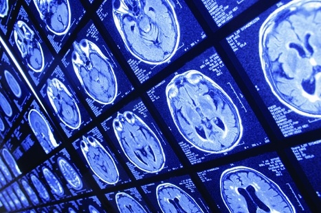 AI algorithm detects and identifies brain lesions